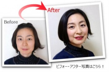before_after_top