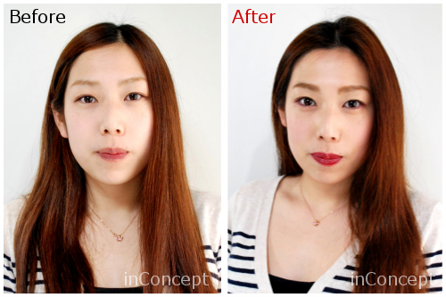 beforeafter(裸眼)